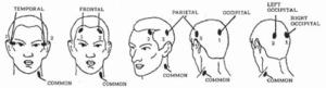 VPL-BIO-EEG 2